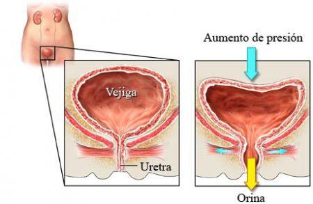 Suelo pélvico, incontinencia urinaria, ejercicio y Fisioterapia